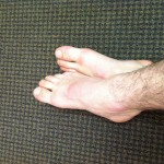 How We (Almost) Cured Tendonitis in a Dancin' Boy's Feet